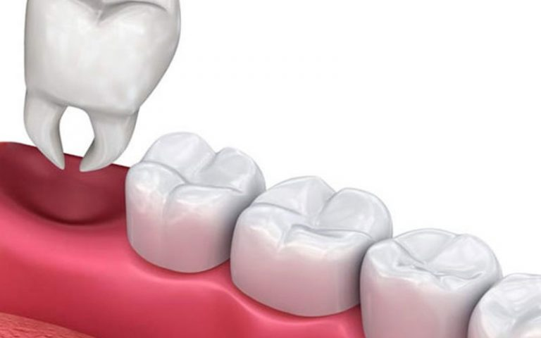 tooth extraction in seton